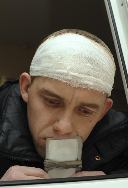 CLARIFIES CAPTION - Alexander Babin, a rescuer employed by Chelyabinsk Airlines, who was injured by glass from window at his home broken by a shock wave from a meteor explosion, rests after getting medical care in Chelyabinsk Regional Hospital in Chelyabinsk, about 1500 kilometers (930 miles) east of Moscow, Saturday, Feb. 16, 2013. A meteor that scientists estimate weighed 10 tons (11 tons) streaked at supersonic speed over Russia's Ural Mountains on Friday, setting off blasts that injured some 500 people and frightened countless more. (AP Photo/Boris Kaulin)