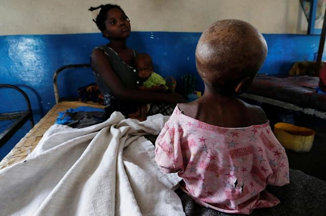 <p>Ntumbabu Kalubi, 4, an internally displaced and severely acute malnourished child waits to receive medical attention at the Tshiamala general referral hospital of Mwene Ditu in Kasai Oriental Province in the Democratic Republic of Congo, March 15, 2018. (Photo: Thomas Mukoya/Reuters) </p>