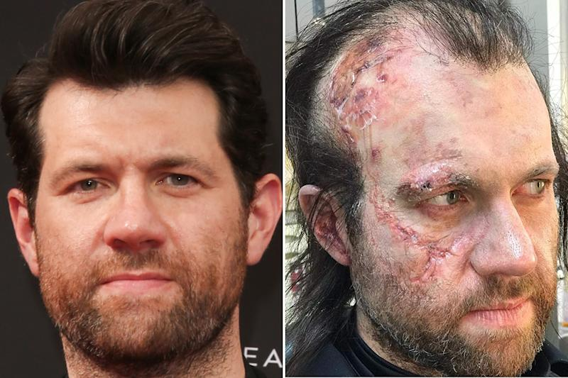 Poor Billy Eichner spent a good part of Apocalypse running around as a tattered survivor of the nuclear fallout. Photos courtesy of Getty Images and IMDB.