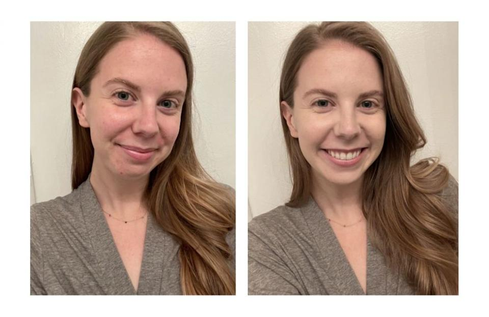 On the left, I'm makeup-free. On the right, I'm wearing only the Skin Balm in the shade 1.0.Credit: Julia Webb for In The Know