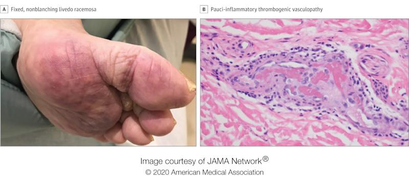 Skin manifestations of COVID patients