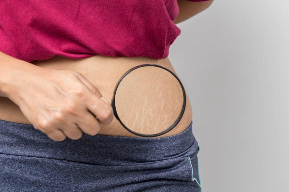 Woman shows stretch marks on her stomach.