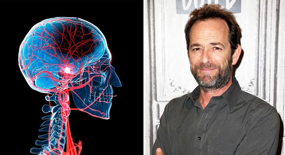 Luke Perry's death following a stroke has highlighted stroke risk for the younger generation [Photo: Getty]