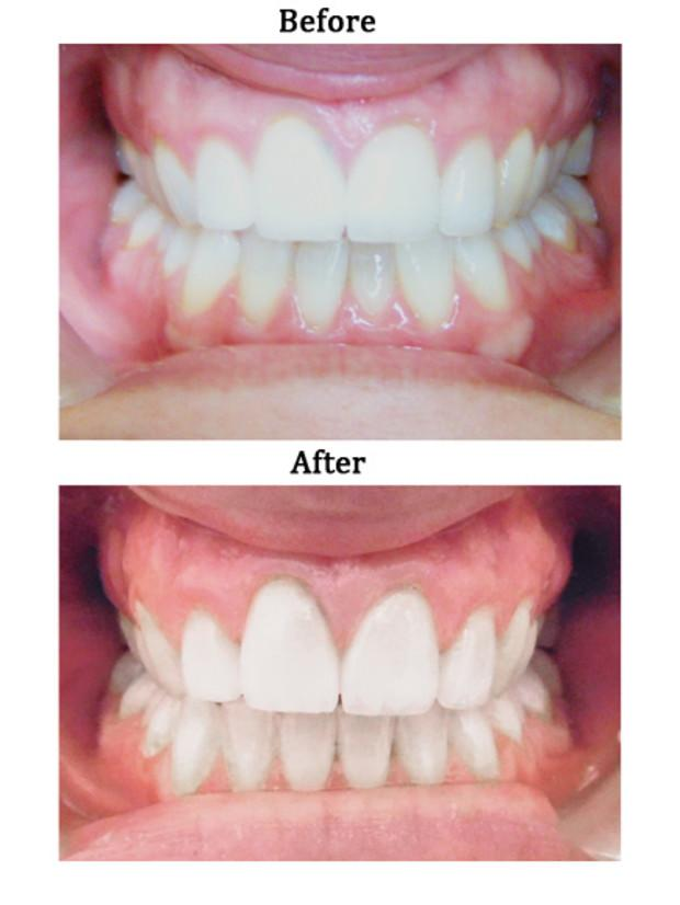 9 Things You Need to Know About Invisalign Before You ...