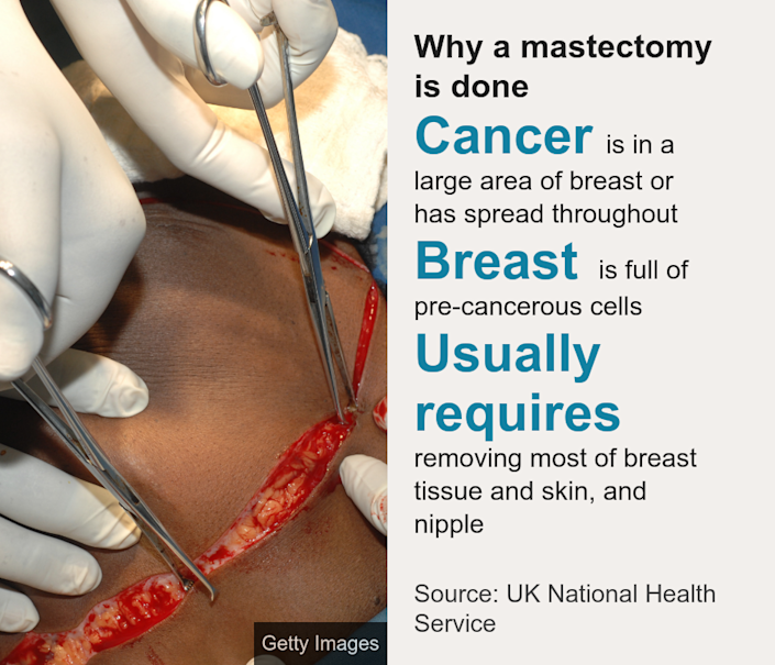 Why a mastectomy is done. [ Cancer is in a large area of breast or has spread throughout ],[ Breast is full of pre-cancerous cells ],[ Usually requires removing most of breast tissue and skin, and nipple ], Source: Source: UK National Health Service, Image: Surgeon creating incision line on left breast
