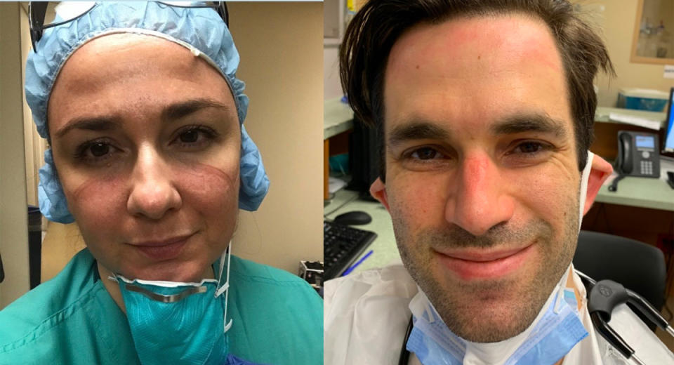 Nurse Cathy Nasso and Dr. Michael Taylor, New York City healthcare workers caring for covid-19 patients, with sore, red skin and ulcers from wearing PPE during long, back-to-back hospital shifts. (Photos: Courtesy of Rosalee Nasso and Karen Ambert)