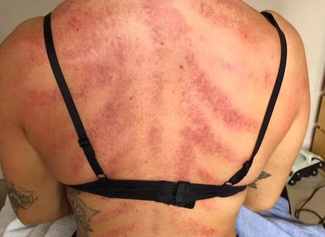 A massage therapist from Leicester has warned hairdressers of the damage the job can do to their backs. (Photo: Facebook)