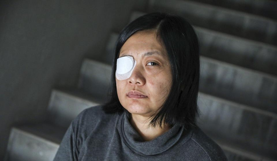 Indonesian journalist Veby Mega Indah was left blind in one eye after being shot during a protest in September. Photo: K.Y. Cheng