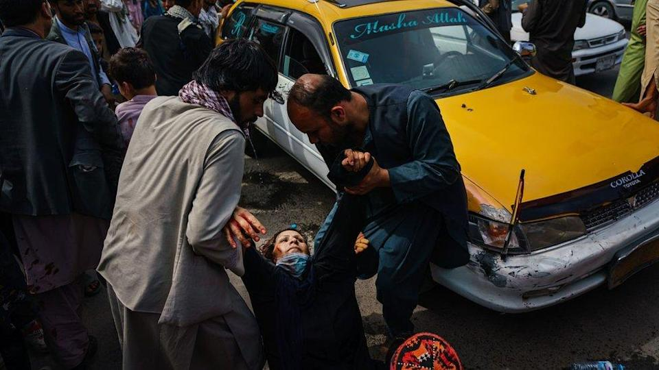 A woman injured in Kabul