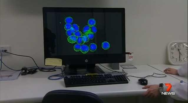 Glioblastoma multiforme - or GBM - is the most common and lethal brain cancer. Photo: 7 News
