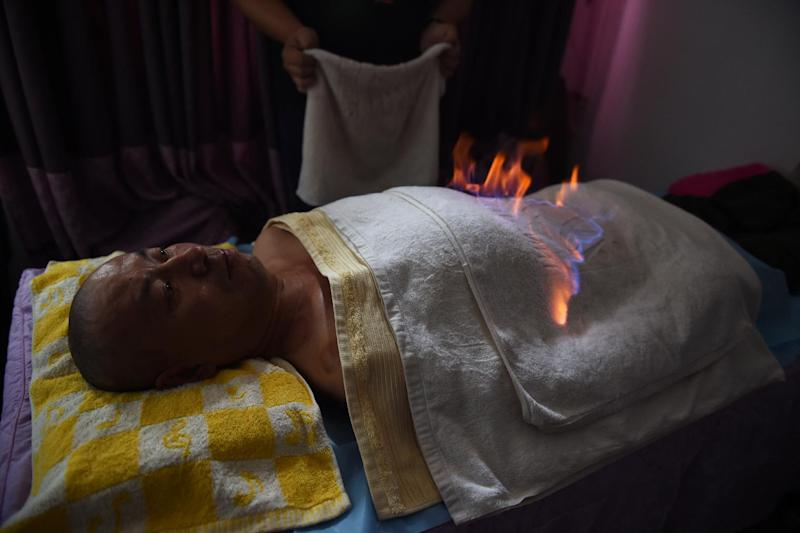 "Qi Lijun undergoes ""fire therapy"" at an apartment in Beijing, June 17, 2014 (AFP Photo/Greg Baker)"