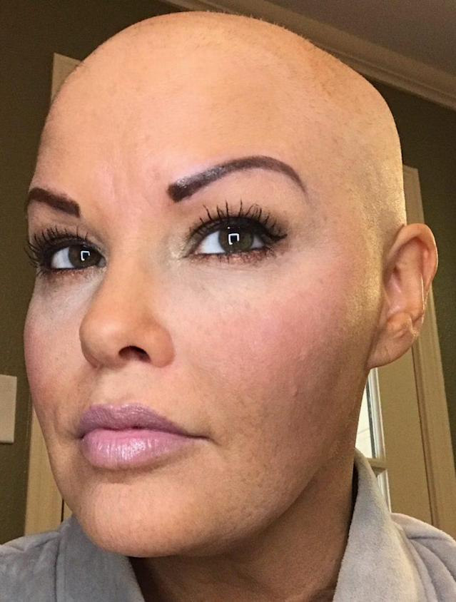 Wendy Freden looking bald and beautiful. (Photo courtesy of Cameron Stokes)