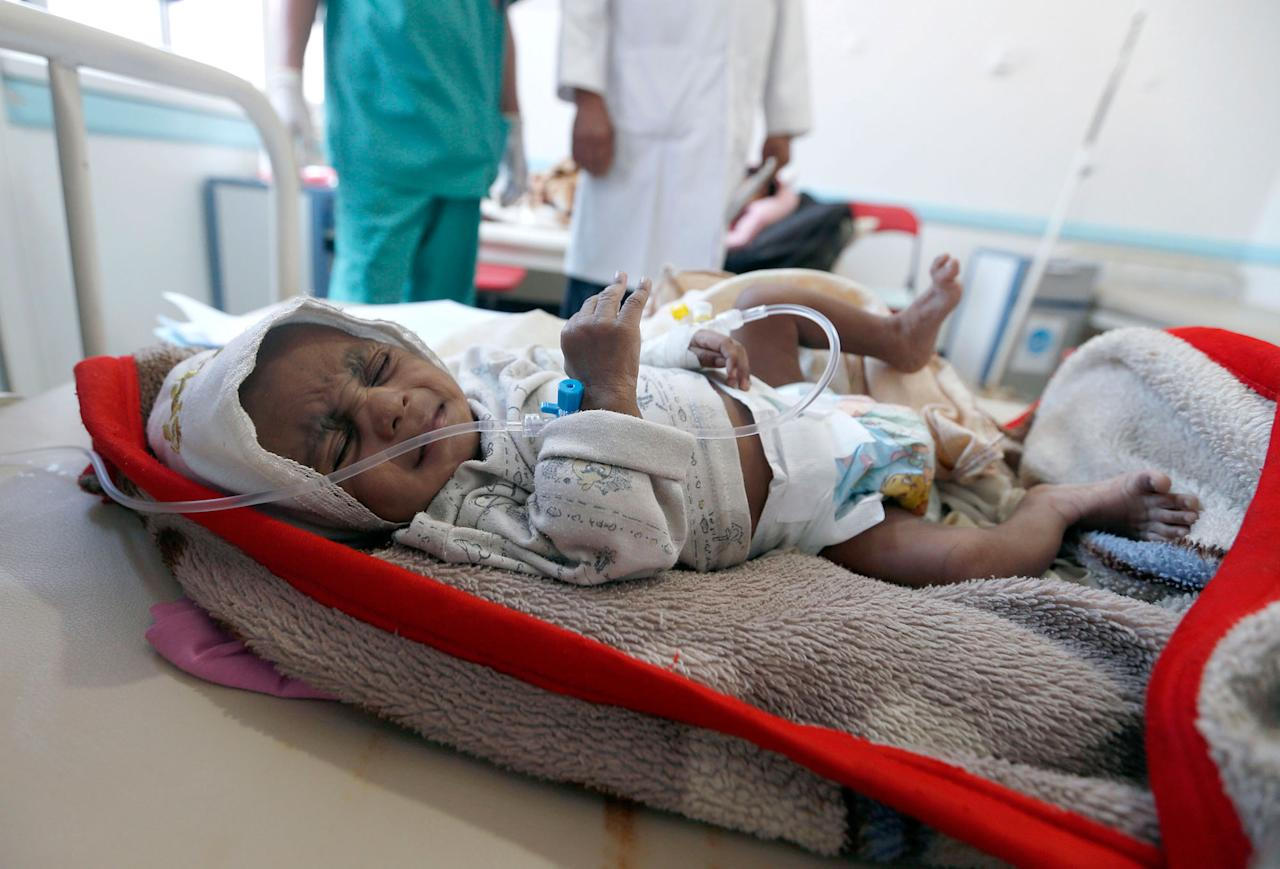 """<p>A Yemeni child suspected of being infected with cholera receives treatment at a hospital in Sana'a on May 25, 2017.<br /> Cholera has killed 315 people in Yemen in under a month, the World Health Organization has said, as another aid organisation warned Monday the outbreak could become a """"full-blown epidemic"""". (AFP/Getty Images) </p>"""