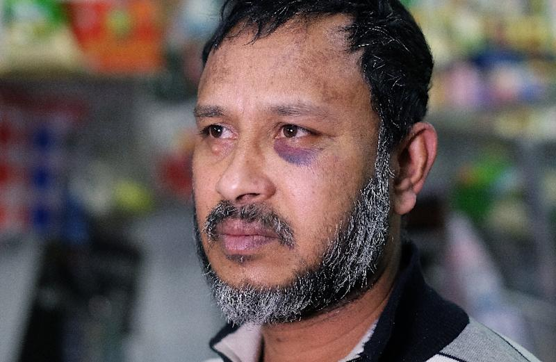 Shopkeeper Sarkar Haq, who was beaten in an alleged hate crime, is pictured at his shop in New York on December 7, 2015 as Muslim American leaders accused Republican Presidential hopeful Donald Trump of incitement (AFP Photo/Jewel Samad)