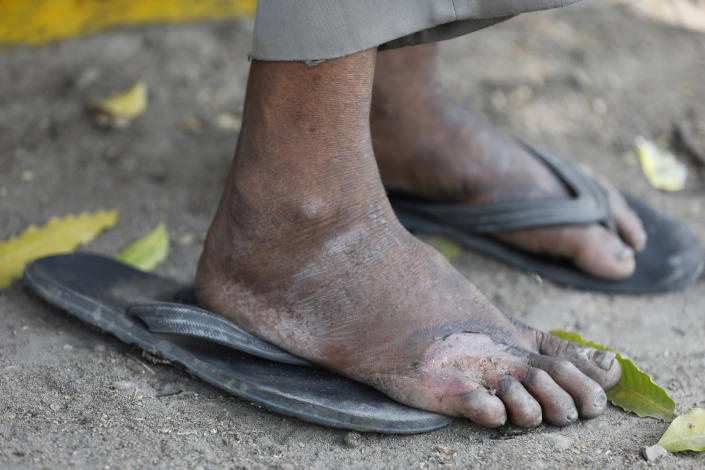 A daily wage laborer with an injured foot rests on the way to his village following a lockdown amid concern over spread of coronavirus on the outskirts of Prayagraj, India, Monday, March 30, 2020. The nationwide lockdown led to a mass exodus of migrant workers from cities towards their villages, often on foot, and without food and water. (AP Photo/Rajesh Kumar Singh)
