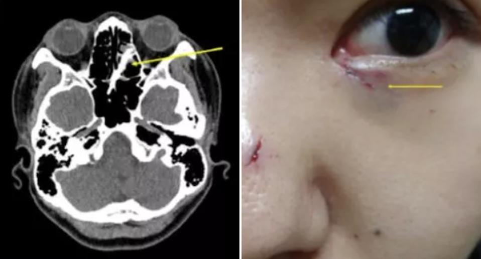 A CT scan shows chopsticks lodged in a woman's nose. Her face is also pictured with cuts.