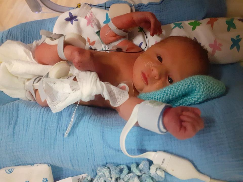 Blay was born two months after his mother underwent surgery to correct spina bifida [Photo: SWNS]