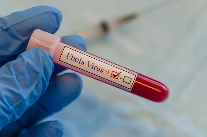 A blood collection tube label as fake ebola virus positive
