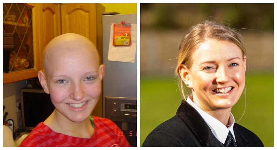 Ayesha during her cancer treatment (left) and 14 years later (right) (SWNS)