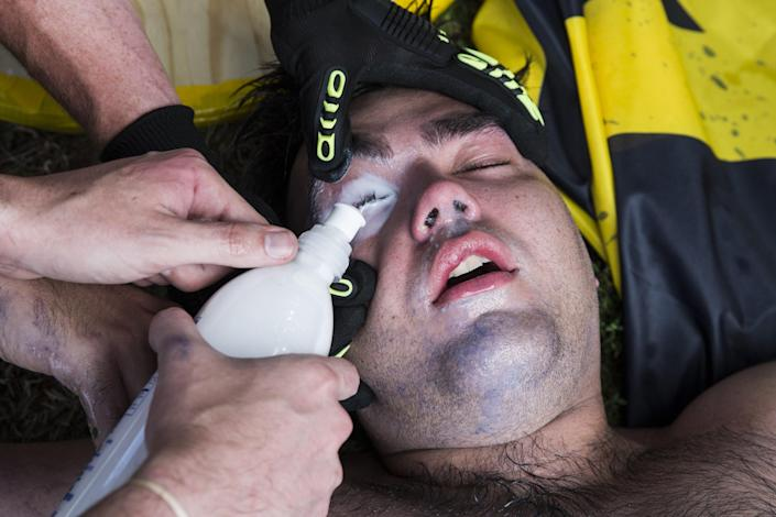 <p>A White Supremacist has a special mixture poured in his eyes after being hit with pepper spray during clashes with counter protestors at Emancipation Park where the White Nationalists are protesting the removal of the Robert E. Lee monument in Charlottesville, Va., on Aug. 12, 2017. (Photo: Samuel Corum/Anadolu Agency/Getty Images) </p>
