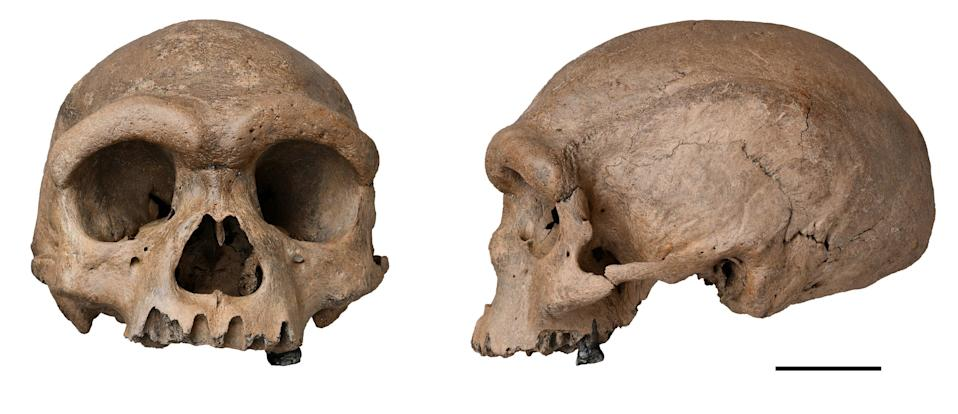 The Harbin cranium, which was reportedly discovered in China in 1933 (Chuang Zhao/PA)