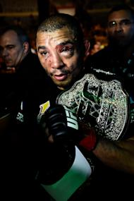 UFC featherweight champion Jose Aldo. (Photo by Buda Mendes/Getty Images)