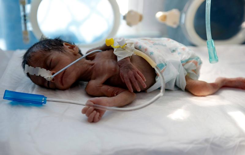 A malnourished baby lies in an incubator in the neonatal intensive care unit of a hospital in Sana'a, Yemen: EPA