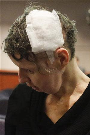 Charla Nash, shows her wounds before her hearing at the Legislative Office Building in Hartford, Connecticut, March 21, 2014. REUTERS/Eduardo Munoz