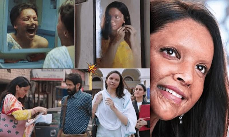 5 Things Which I Thought While Watching The Chhapaak Trailer