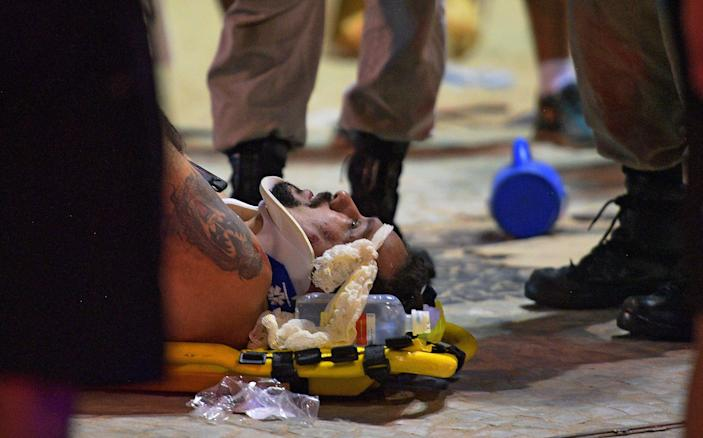 <p>An injured man is assisted at Copacabana beach in Rio de Janeiro on January 18, 2018.<br> Jan. 18, 2018. (Photo: Carl de Souza/AFP/Getty Images) </p>