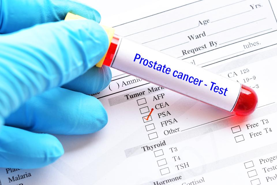 Blood sample tube with lab requisition form for PSA test, prostate cancer diagnosis