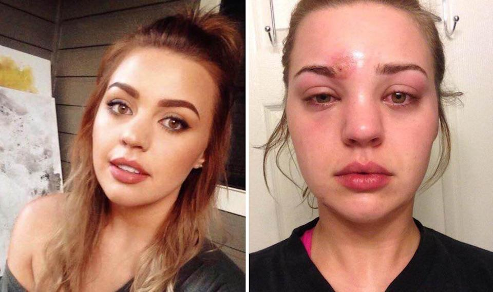 """Within an hour my entire face swelled up"" [Photo: Katie Wright/Facebook]"