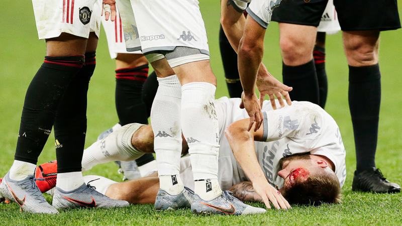Stuart Dallas of Leeds United is treated after sustaining a head wound during a pre-season friendly match between Manchester United and Leeds United at Optus Stadium on July 17, 2019 in Perth, Australia. (Photo by Will Russell/Getty Images)