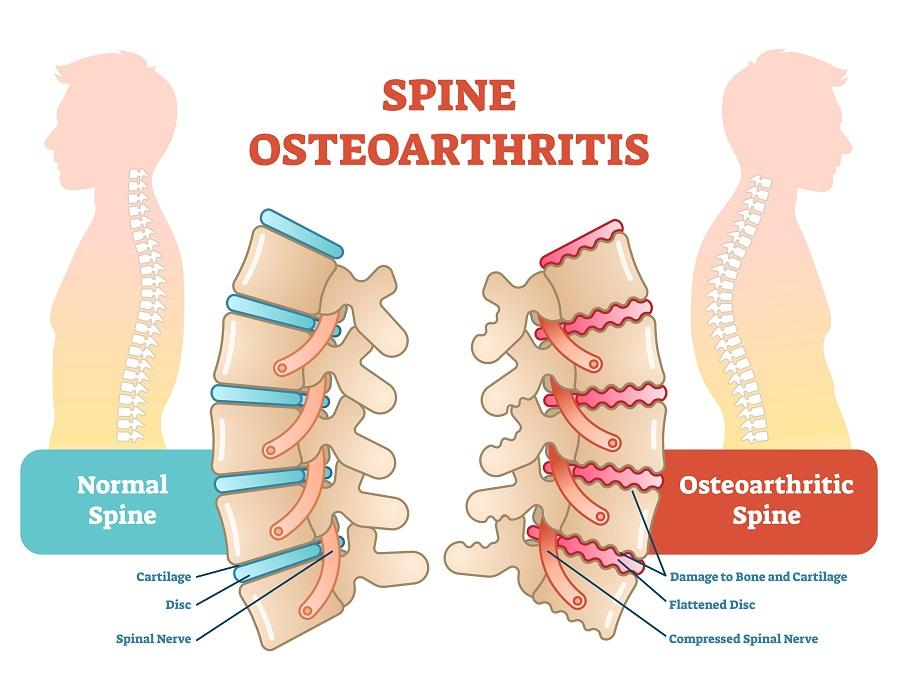 Some types of arthritis like Spine osteoarthritis and cancer can contribute to back pain