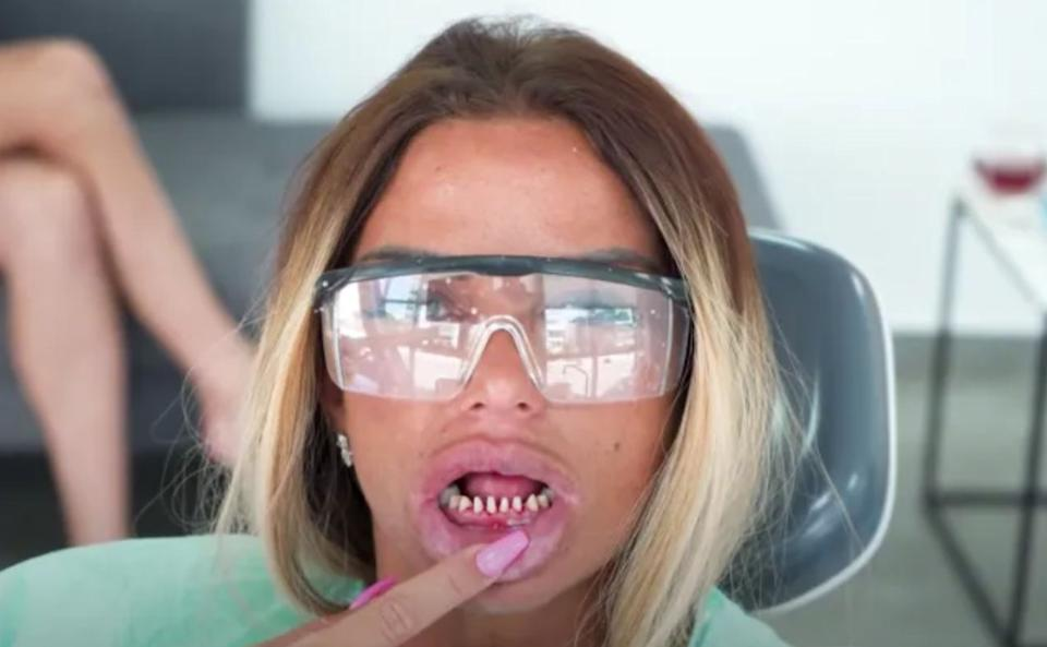 Katie Price shows off what's left of her real teeth. (Photo: YouTube)
