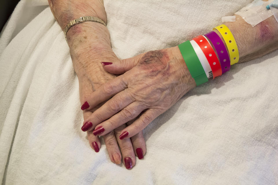 Elderly woman's bruised hands.