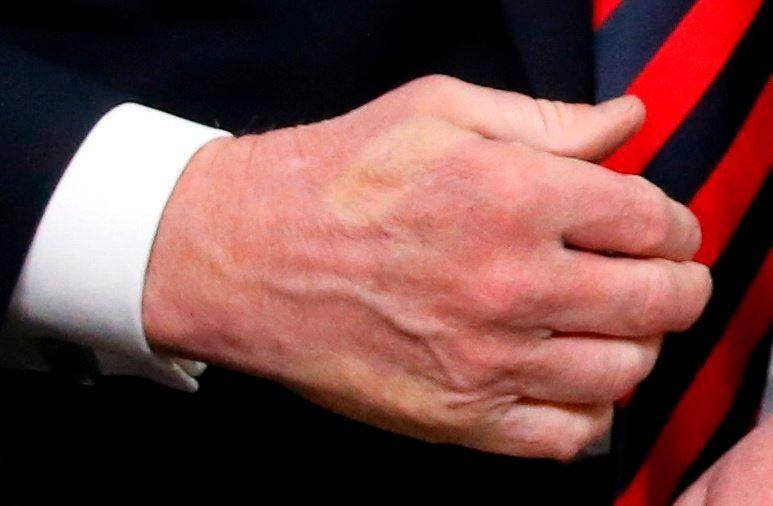 The imprint of Macron's thumb can be seen across the back of Trump's hand after they shook hands.