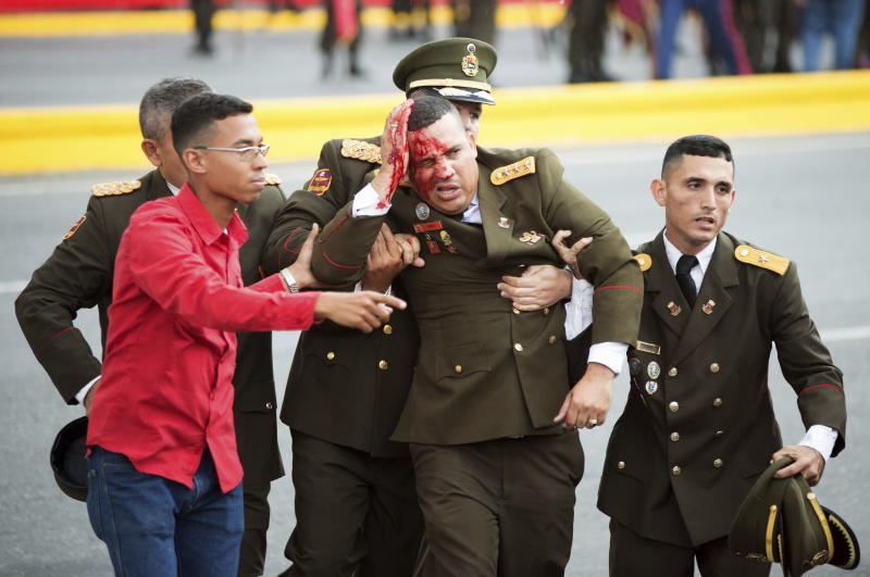 In this photo released by China's Xinhua News Agency, an uniformed official bleeds from the head following an incident during a speech by Venezuela's President Nicolas Maduro in Caracas, Venezuela, Saturday, Aug. 4, 2018. Drones armed with explosives detonated near Venezuelan President Nicolas Maduro as he gave a speech to hundreds of soldiers in Caracas on Saturday but the socialist leader was unharmed, according to the government. (Xinhua via AP)
