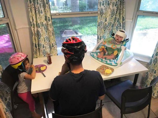 Baby Jonas, who suffers from flat head syndrome, is not alone in his helmet-wearing. (Photo: Facebook/Shayner Guiterrez)