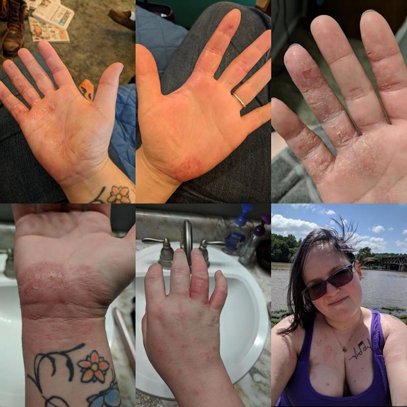 eczema on woman's hands