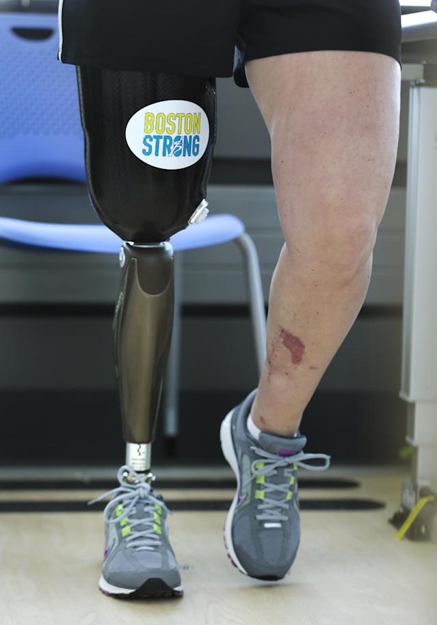 "With a ""Boston Strong"" sticker on the thigh covering of her prosthetic leg, Boston Marathon bombing survivor Roseann Sdoia, of Boston, walks between parallel bars at the Spaulding Rehabilitation Hospital, Friday June 20, 2013, in Boston. Sdoia went back to the hospital to learn to walk with her new leg. (AP Photo/Charles Krupa)"