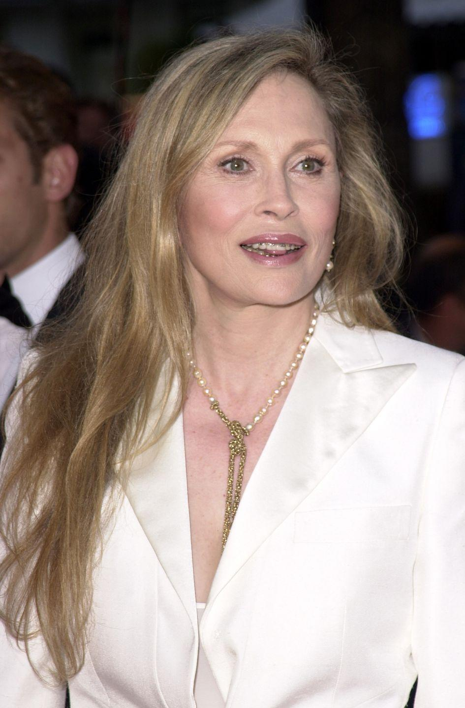 """<p>At 61, Faye Dunaway got braces to take care of her teeth. At the time, Tom Cruise had just gotten his, so Faye gave it a try. """"You just sort of let your teeth go for a while. But it's time to have something done,"""" <a href=""""http://www.dailymail.co.uk/tvshowbiz/article-416022/Faye-Dunaway-flashes-new-pearly-whites.html"""" rel=""""nofollow noopener"""" target=""""_blank"""" data-ylk=""""slk:she said"""" class=""""link rapid-noclick-resp"""">she said</a>. </p>"""