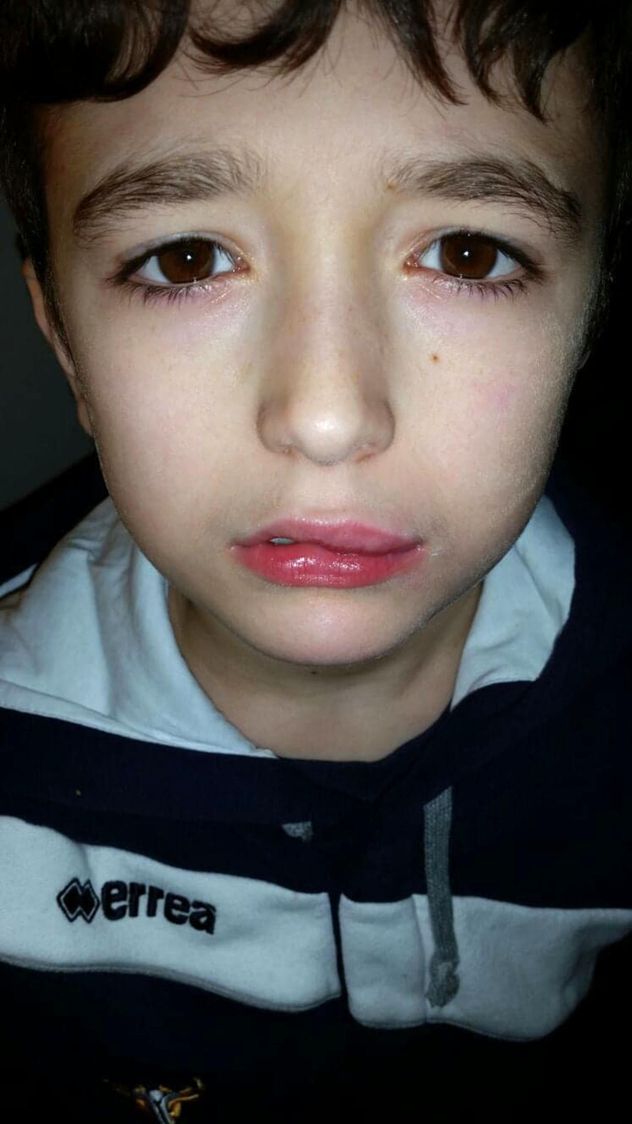 Aiden's lips swelled after an allergic reaction to Halloween sweets [Photo: Caters]