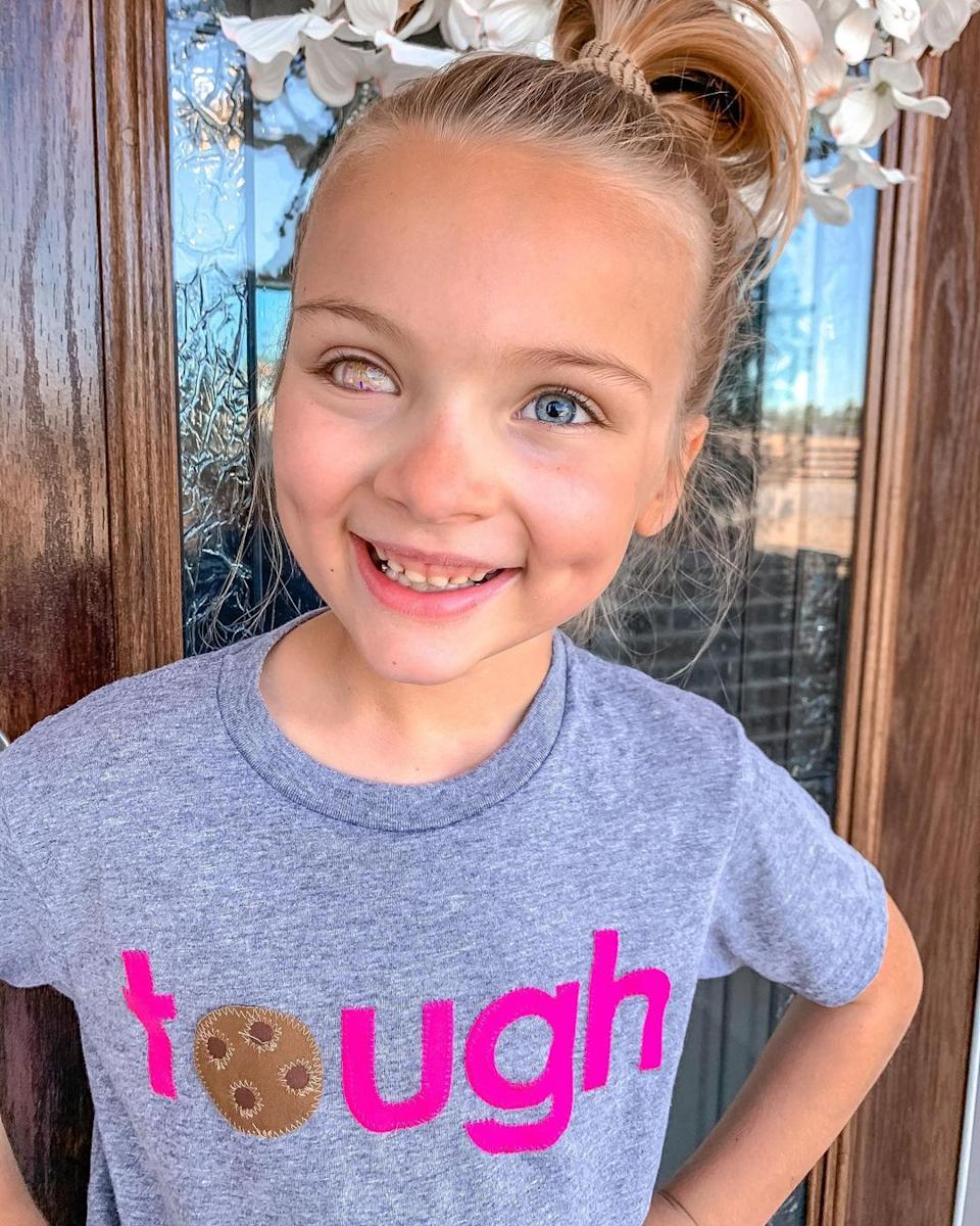 Kinsley wearing her prosthetic eye which contains a cookie retina. Source: Media Drum/Australscope