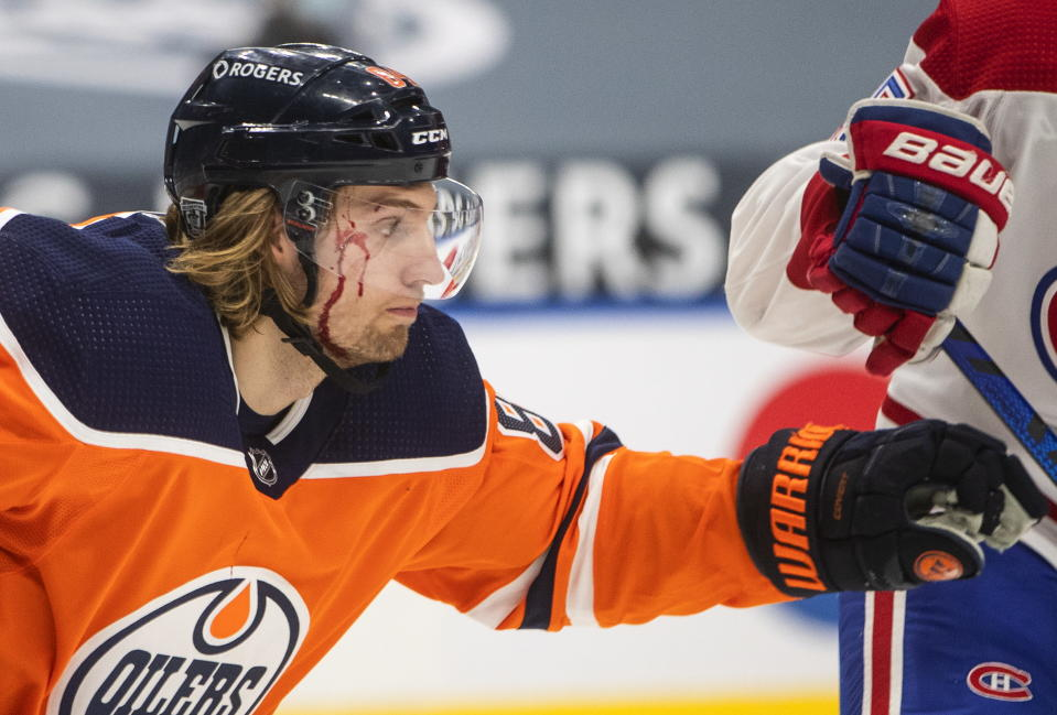 Edmonton Oilers' William Lagesson (84) is injured with a cut to his face during first-period NHL hockey game action against the Montreal Canadiens in Edmonton, Alberta, Monday, Jan. 18, 2021. (Jason Franson/The Canadian Press via AP)
