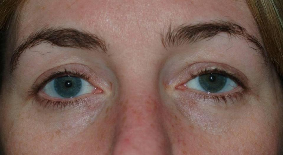 A 42-year-old woman had a contat lens stuck in her eye for 28 years. <i>(Photo courtesy BMJ Case Reports)</i>