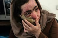 Maram's mother Izdihar, who was also injured, says the road to recovery has been hard, but is hopeful her scars will disappear in two to three years