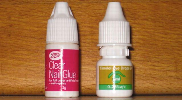 The man confused the nail glue, similar to superglue, with the eye drops. Photo: BMJ