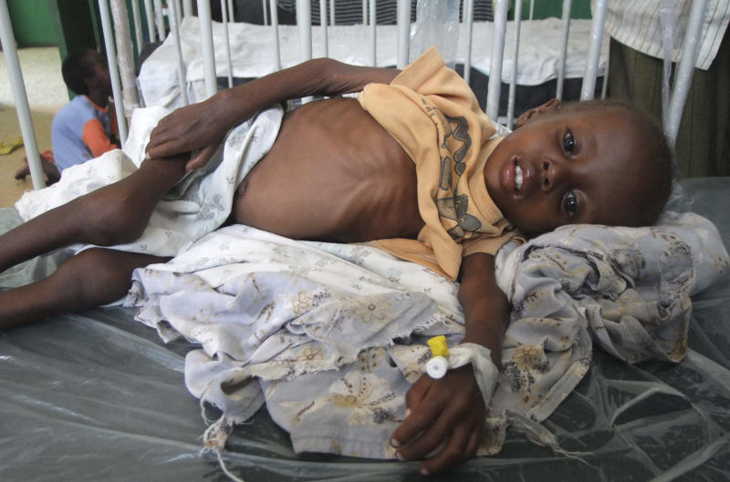 A Somali malnourished child from southern Somalia is treated in Banadir hospital in Mogadishu, Somalia, Friday, July 22, 2011.  Drought and lack of food is forcing people to migrate to seek aid, with some thousands of people arriving in Mogadishu over the past two weeks.  The worst drought in the Horn of Africa has sparked a severe food crisis and high malnutrition rates, the United Nations has said.  (AP Photo/Farah Abdi Warsameh)