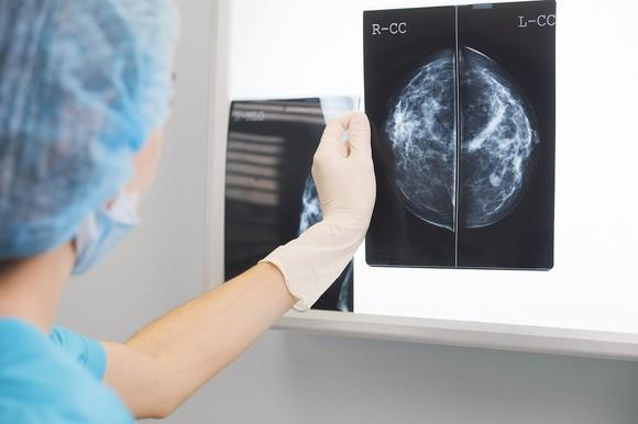 Nurse attaching mammogram to light board.